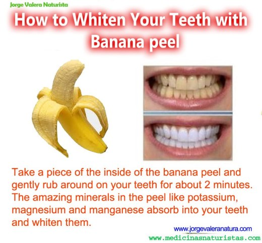 banana whitening teeth